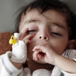 Yemen's famine crisis